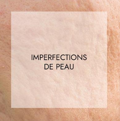 imperfection de la peau