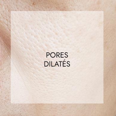 pores dilates